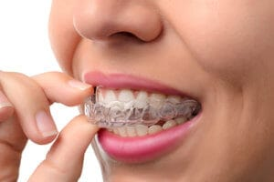 A woman inserts her aligner as part of her Invisalign treatment