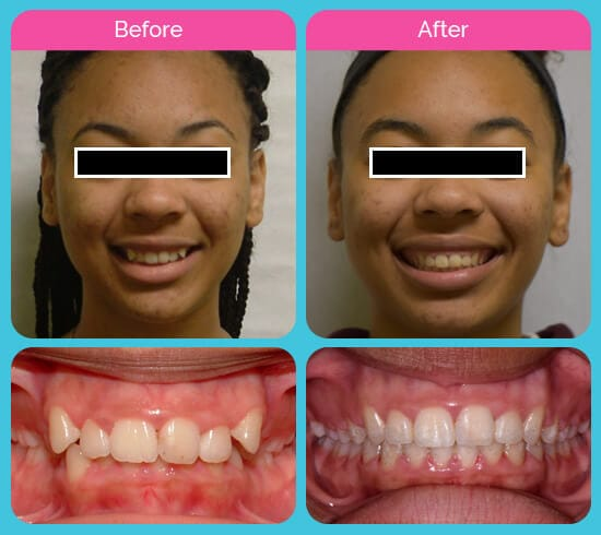 Before and after of a G Orthodontics client at Garcia Orthodontics Houston TX