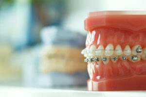 A teeth model features both metal and ceramic braces